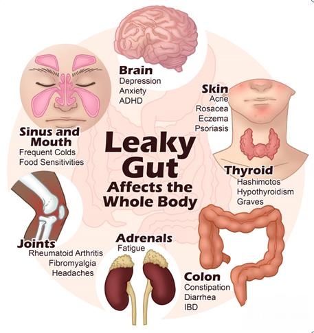 LeakyGutAffectsthe whole body