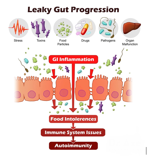 LeakyGutProgression