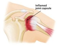 frozen shoulder inflammation bone-on-bone-1